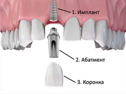 имплантант зуб